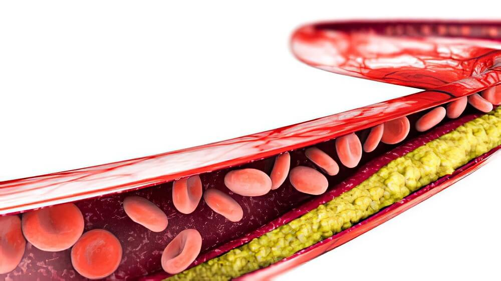 reduce cholesterol in 30 days