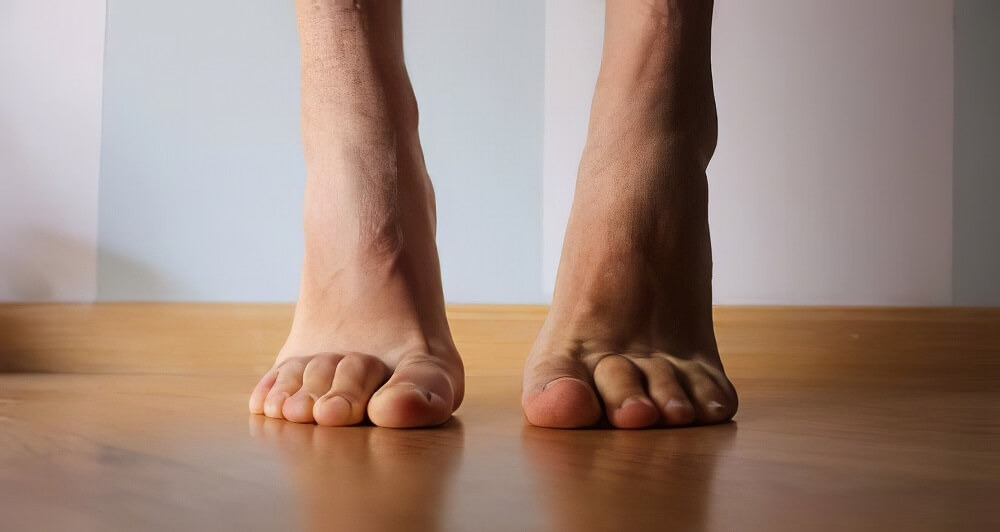 Tiptoe Walk exercise to strengthen calf muscle